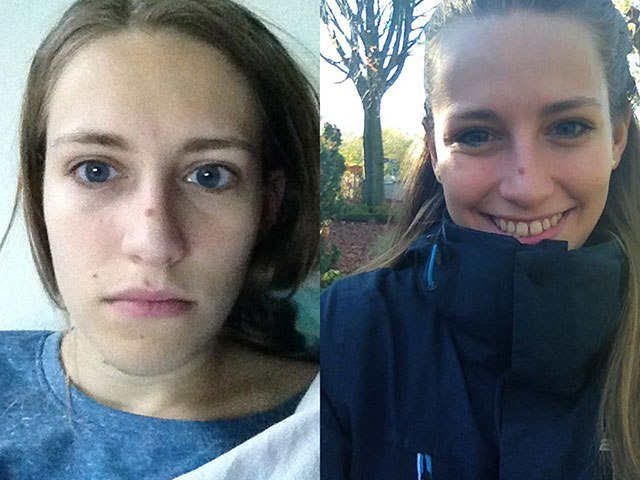 Picture 1: A depressed person. Picture 2: Still a depressed person. Pictures are only a couple of days apart. I really don't feel like publishing this image, but it goes to prove my point. - This is how a depressed person looks