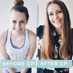 Before & After Chronic Pain
